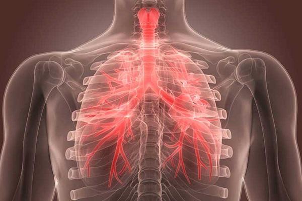 Cẩn thận suy hô hấp - suy thận khi bị viêm phế quản phổi ở người lớn