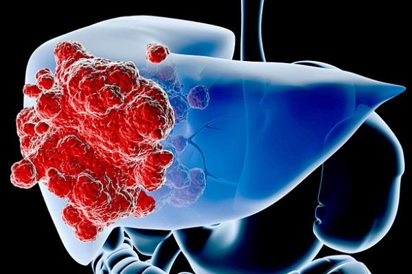 Ung thư gan được phân loại thành ung thư gan nguyên phát và ung thư gan thứ phát.