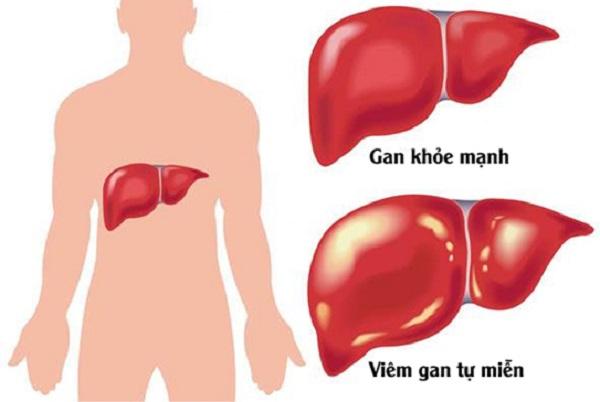 Ăn gừng có thể khiến gan bị nóng.