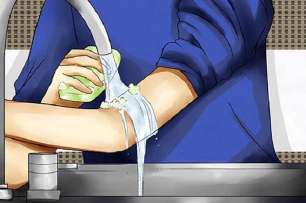 Sơ cứu vết côn trùng cắn bằng nước và xà phòng