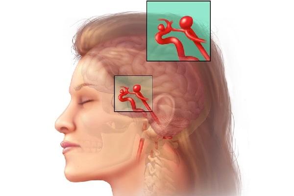 Phình động mạch não là một biến chứng của thiếu máu lên não