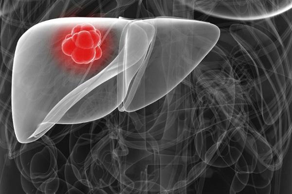 Ung thư gan tiến triển thầm lặng, bệnh nhân đến gặp bác sĩ thường khi bướu đã lan rộng. Ảnh: cancer liver