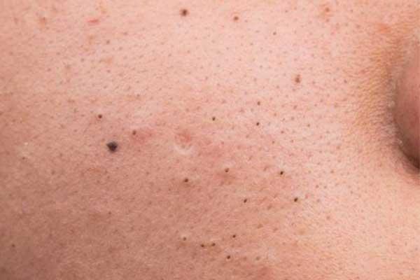 Mụn đầu đen, một trong các loại mụn thường gặp nhất.