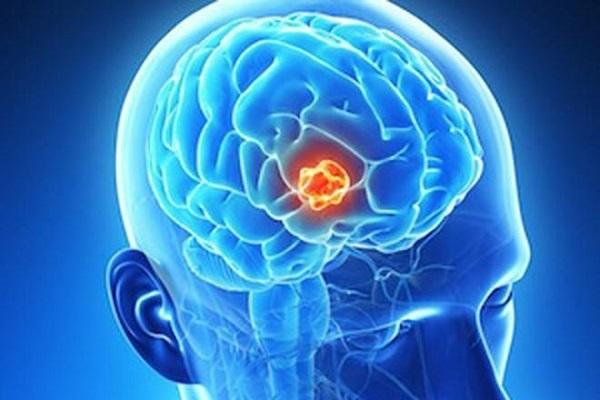 U  não có thể gây ra đau đầu.