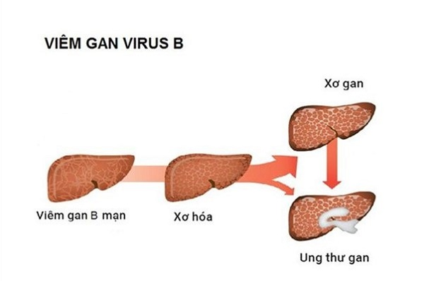 Viêm gan siêu vi B và các tổn thương gan
