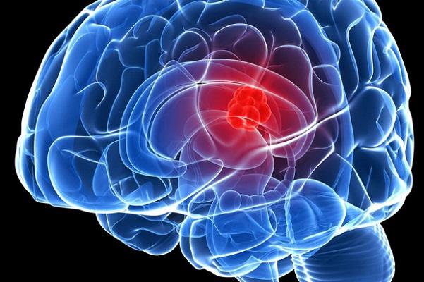 Vẫn chưa tìm ra mối liên kết rõ ràng giữa não bộ và trầm cảm.