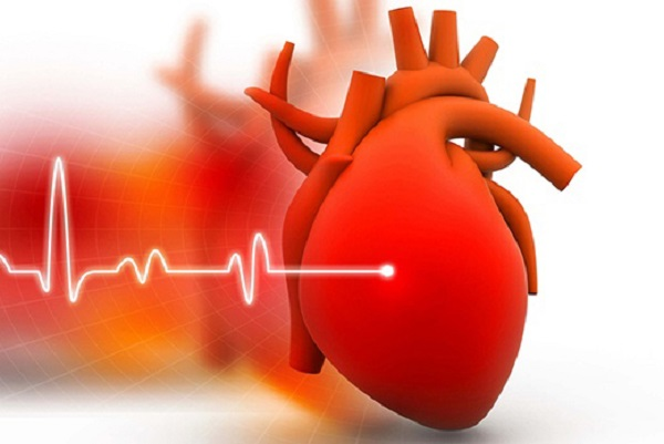 Nguyên nhân gây suy tim phổ biến nhất là bệnh lý mạch vành