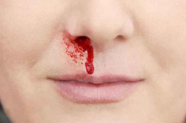 Chảy máu cam nhiều có thể là dấu hiệu giãn mao mạch xuất huyết