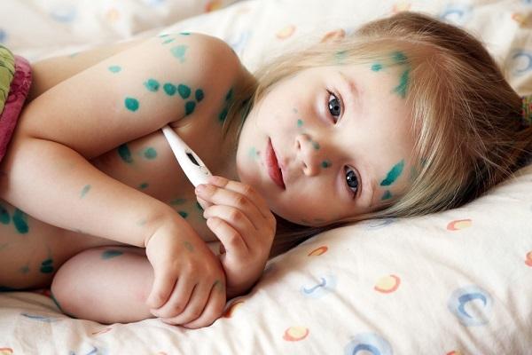 Phát ban, sốt là những dấu hiệu bệnh thủy đậu điển hình