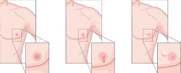 Núm vú bị thụt vào trong, rò rỉ dịch hoặc xuất hiện khối u trên vú đều là các dấu hiệu bị ung thư vú ở nam giới.