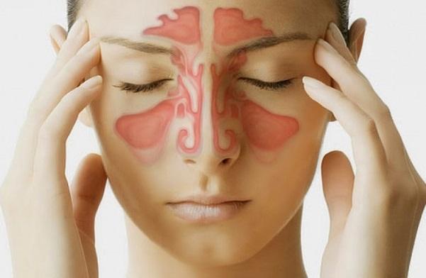 Viêm xoang là bệnh lý khó chữa dứt điểm gây khó chịu cho nhiều người bệnh.