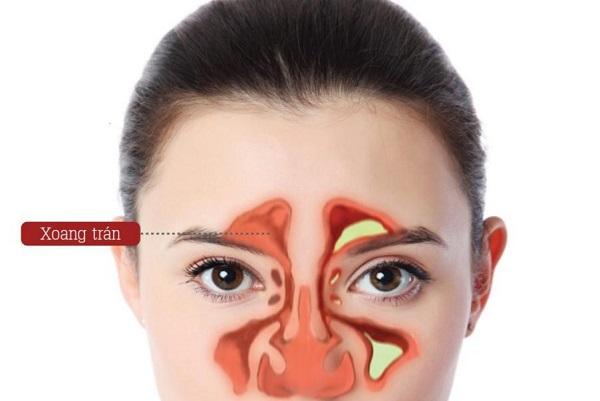 Nước mũi màu vàng do tích tụ dịch viêm.