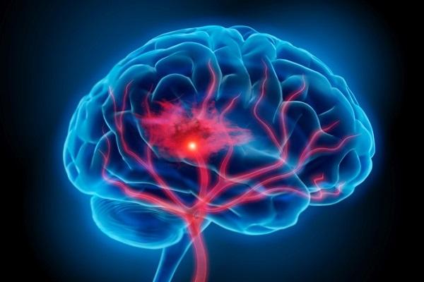Tai biến mạch máu não xảy ra khi dòng máu lưu thông trong mạch máu não bị hạn chế khiến tế bào não không được cung cấp đủ chất dinh dưỡng.