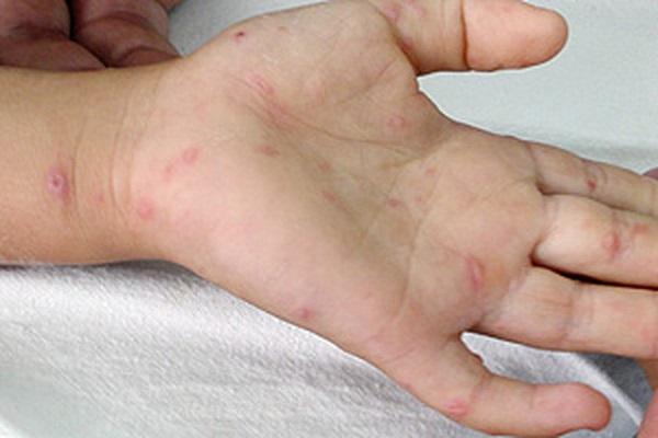 Bệnh tay chân miệng thường xảy ra vào mùa hè và mùa thu, đặc biệt ở trẻ sơ sinh, trẻ nhỏ