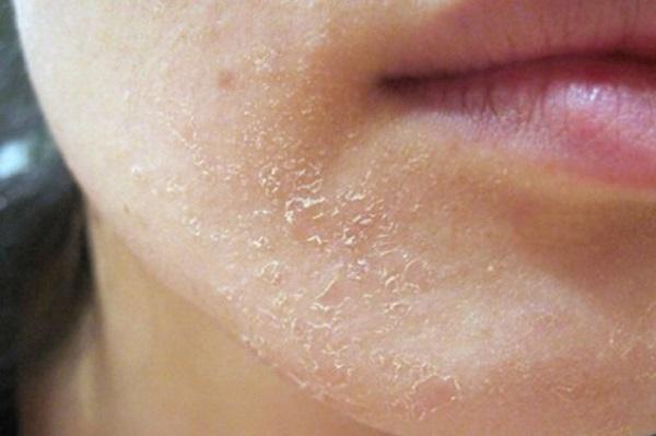 Dị ứng da mặt có thể khiến cho da mặt sần sùi, sưng môi hay chảy nước mắt