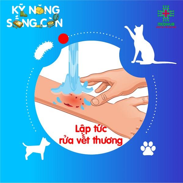 Rửa vết thương bằng xà phòng dưới vòi nước chảy, liên tục trong 15 phút. Sau đó, rửa lại vết thương bằng cồn hoặc oxy già để làm sạch vi khuẩn gây bệnh dại.