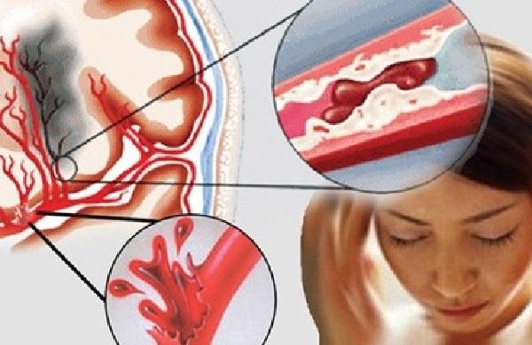 Tắc nghẽn hoặc vỡ mạch máu não là các nguyên nhân gây tai biến mạch máu não nặng