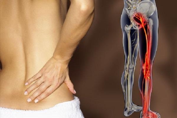Đau thần kinh tọa do dây thần kinh tọa bị chèn ép hoặc tổn thương