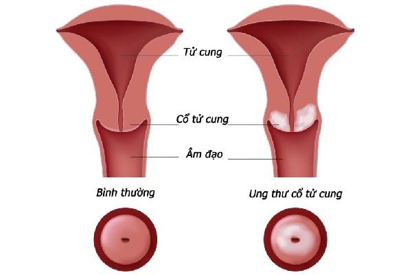Cổ tử cung khi bình thường và khi bị ung thư