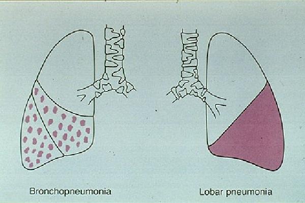 So sánh giữa viêm phổi phế quản (trái) và viêm phổi thùy (phải)