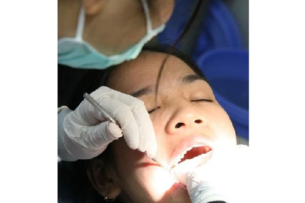 Sử dụng vật liệu trám răng an toàn để không nhiễm thủy ngân