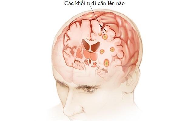 Hình ảnh các khối ung thư phổi di căn lên não