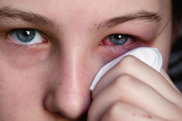 Đau mắt đỏ do dị ứng thường được bác sĩ khuyên dùng thuốc kháng histamine.