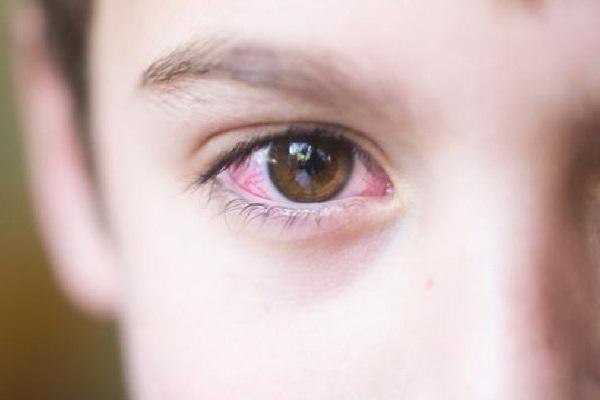 Đau mắt đỏ ở trẻ em mặc dù là bệnh lý phổ biến