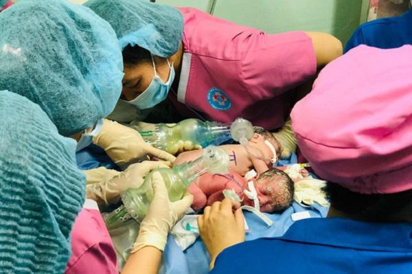 Tại Bệnh viện Hùng Vương, hai bé gái song sinh được sinh mổ an toàn - Ảnh: BVCC