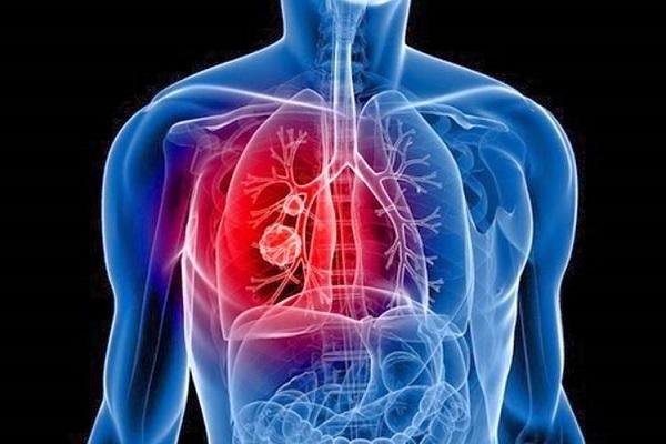 Ung thư phổi có thể di căn đến hạch