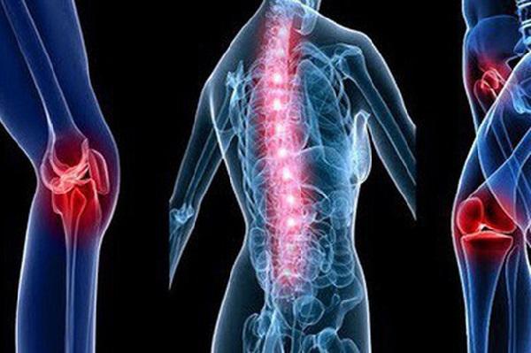 Ung thư phổi thường di căn vào xương cột sống, xương đùi,...