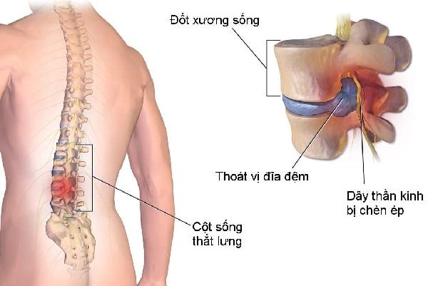 Nguyên nhân dẫn đến đau thần kinh tọa chủ yếu xuất phát từ vấn đề cột sống thắt lưng