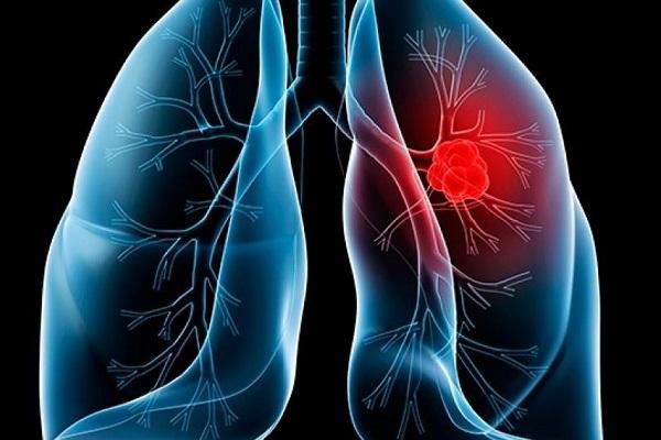 Ung thư phổi xảy ra khi có sự đột biến ở các tế bào khỏe mạnh.