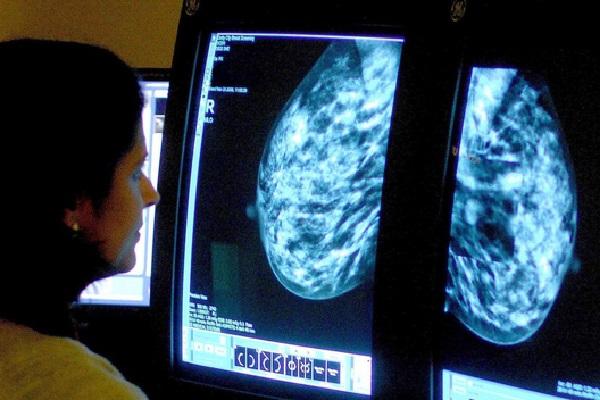 Xem xét hình ảnh chụp cơ quan nghi bị ung thư - Ảnh: AFP