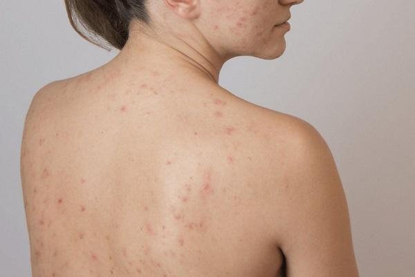 Có nhiều nguyên nhân gây mụn ở lưng, trong đó yếu tố hàng đầu là do bã nhờn cơ thể