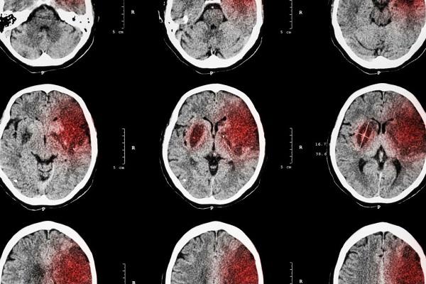 Khi điều trị, điều đầu tiên cần làm là xác định vùng nào ở não bị tổn thương