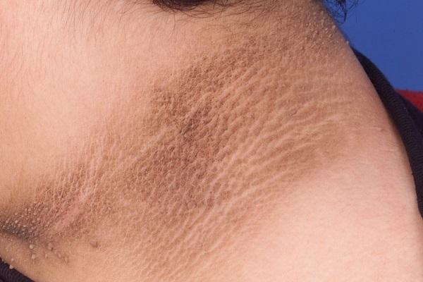 Vệt thâm của bệnh gai đen thường xuất hiện tại các vùng da nếp gấp như cổ, nách