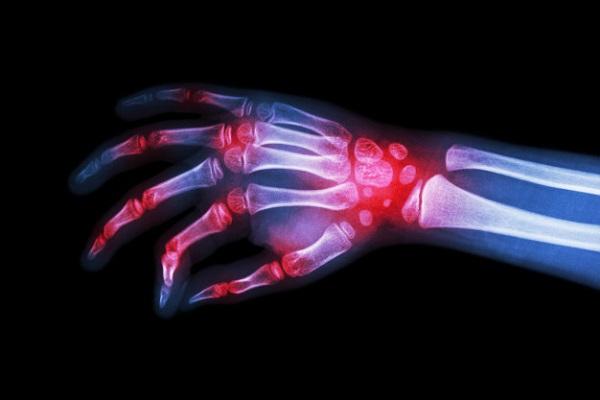 Viêm khớp có thể xảy ra ở các vị trí khớp khác nhau của bàn tay