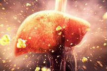 Gan nhiễm mỡ có dẫn đến xơ gan, ung thư gan không?