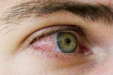Viêm kết mạc có phải là bệnh đau mắt đỏ?