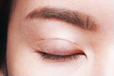 Mắt bị sưng có phải sắp bị đau mắt đỏ?