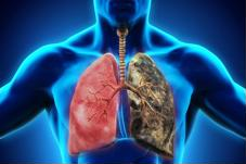 Dấu hiệu nhận biết, cách điều trị và phòng bệnh ung thư phổi