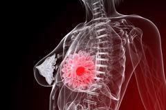Dấu hiệu nhận biết ung thư vú giai đoạn 4 và cách điều trị