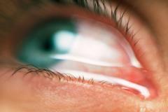 5 nguyên nhân từ thông thường đến nguy hiểm khiến mắt bị đỏ