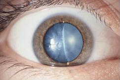 Nguy cơ mù lòa: Biến chứng mắt do đái tháo đường