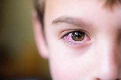 Đau mắt đỏ mấy ngày khỏi, làm gì để giảm triệu chứng?