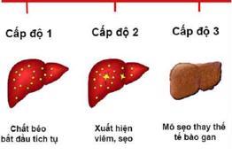 Gan nhiễm mỡ độ 3: Báo động xơ gan, suy giảm chức năng gan!