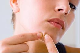 Da láng mịn nhờ 5 cách trị mụn ẩn đơn giản