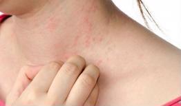 Các bệnh lý da thường gặp