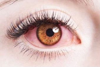 Đau mắt đỏ kiêng gì? Nhất định cần biết 10 điều sau